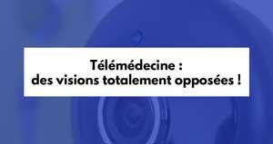 Télémédecine : des visions totalement opposées !